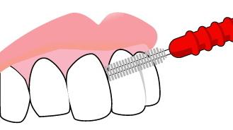 虫歯予防には歯間ブラシも必要だった!歯間ブラシの使い方とは?のサムネイル画像